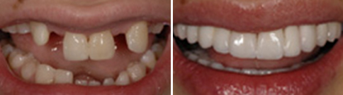 Unsightly missing teeth corrected with fixed bridgework