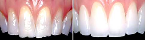 Cosmetic bonding before and after photo