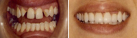 Laminate Veneers before and after